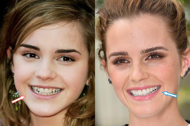 Emma Watson v dospělosti a dospívání